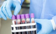 Ученый заявил, что оксфордская вакцина от коронавируса имеет 50% шансов на успех